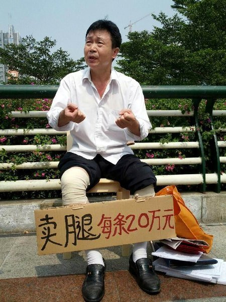 Chinese Man Sells His Legs for $60,000 in Guangzhou