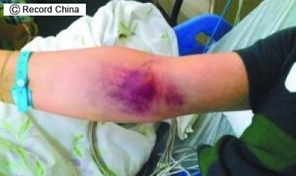 Chinese man's body covered in bruises after eating shish kebab possibly containing rat meat