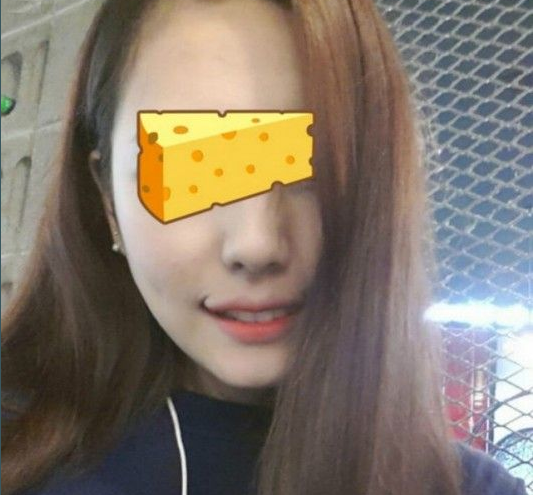 Smile Lipt surgery Korea