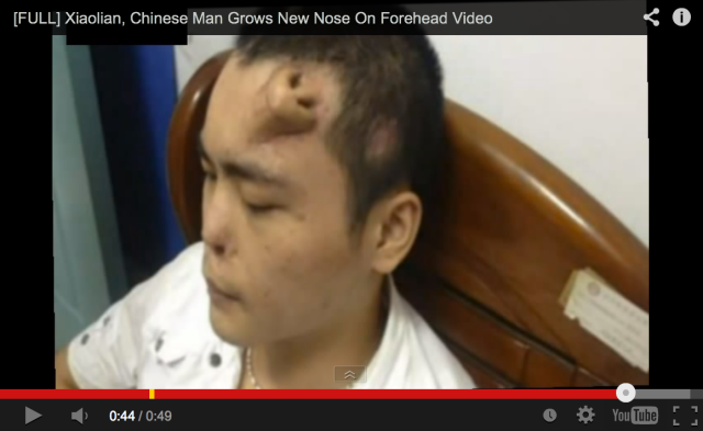Chinese man loses his nose in an accident, has new one artificially grown on his forehead