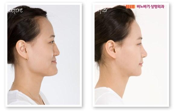 jaw surgery korea3