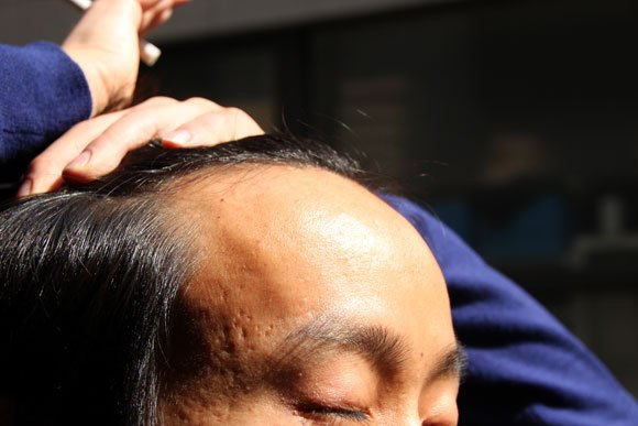 "Tokyo pub offers ""balding discount"" for follicly-challenged diners"