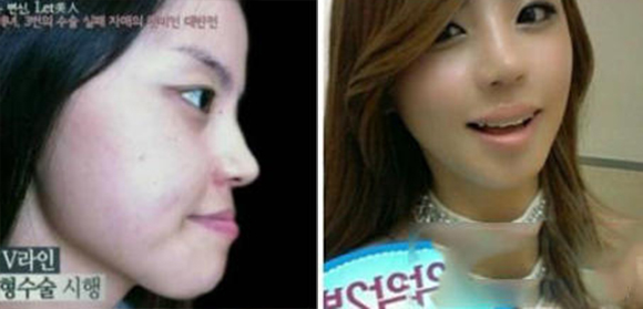 "Yup, it's time for another ""Korean plastic surgery"" picture post【Photos】"