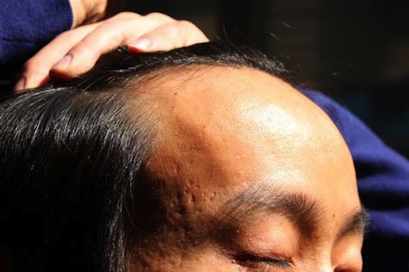 Mirror, mirror, on the wall, who's the baldest of them all? Japan top for male baldness in Asia