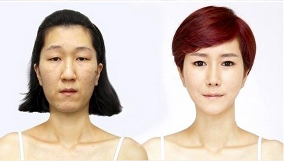 """Ugly"" South Korean woman goes from ""Old Lady Face"" to ""Dream Girl"" with help of cosmetic surgery"