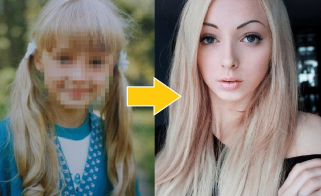 Real-life Barbie swears she's all-natural, reveals childhood photos as proof【Photos】