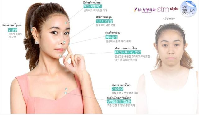 Korean cosmetic surgery show treats two Thai women to free procedures