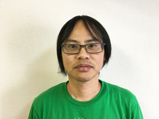 Final results: Here's what Seiji's balding head looks like one year after hair transplant surgery