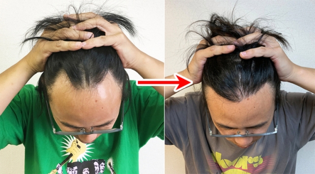 Is it okay to bleach hair that has been surgically transplanted? Seiji reports on his hairline